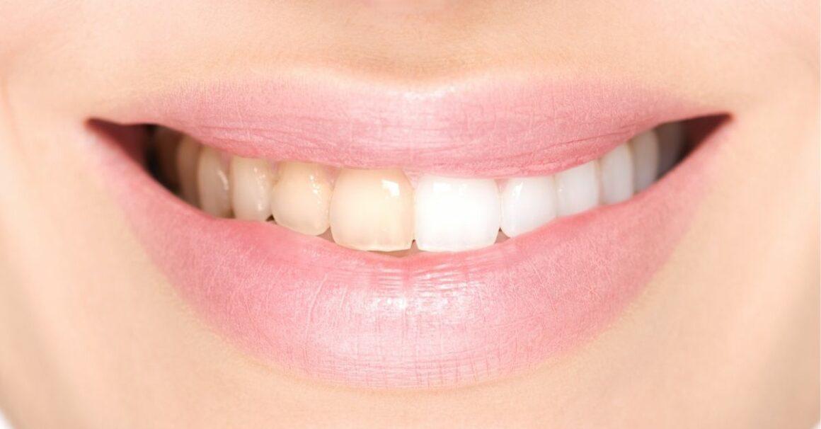 Teeth Bleaching